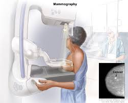 DIAGNOSTIC MAMMOGRAPHY