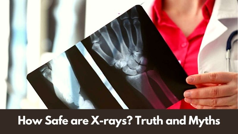 How Safe are X-rays Truth and Myths